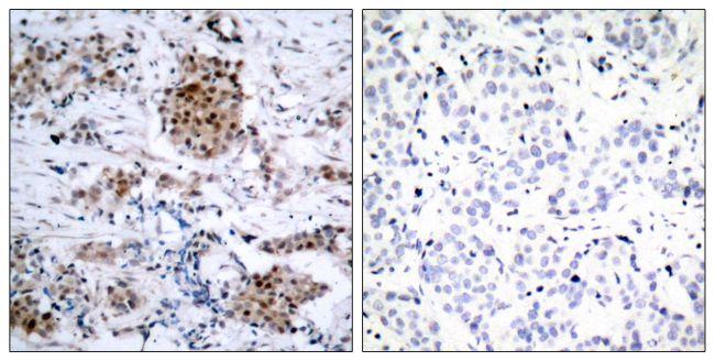 Phospho-Estrogen Receptor alpha (Ser167) Antibody (PA5-37570) in Immunohistochemistry (Paraffin)