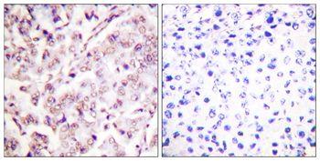 Phospho-ETS1 (Thr38) Antibody (PA5-37572) in Immunohistochemistry (Paraffin)