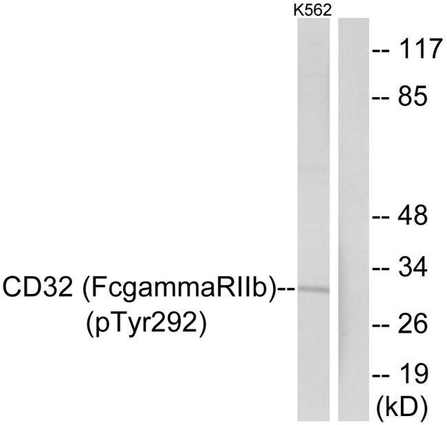 Phospho-FCGR2B (Tyr292) Antibody (PA5-37574) in Western Blot