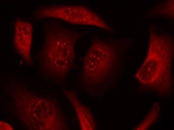 Phospho-FOXO3 (Ser253) Antibody (PA5-37578) in Immunofluorescence