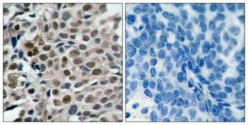 Phospho-FOXO3 (Ser253) Antibody (PA5-37578) in Immunohistochemistry (Paraffin)