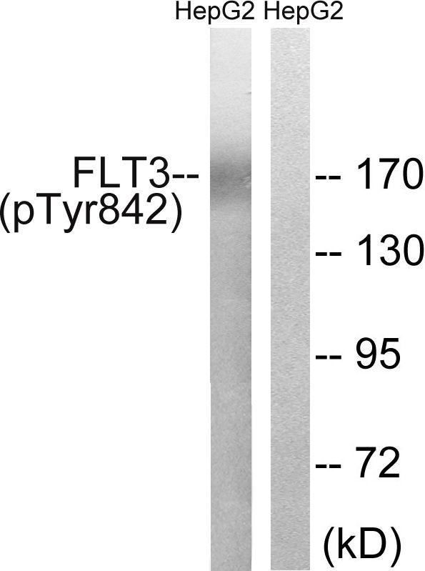 Phospho-FLT3 (Tyr842) Antibody (PA5-37580) in Western Blot