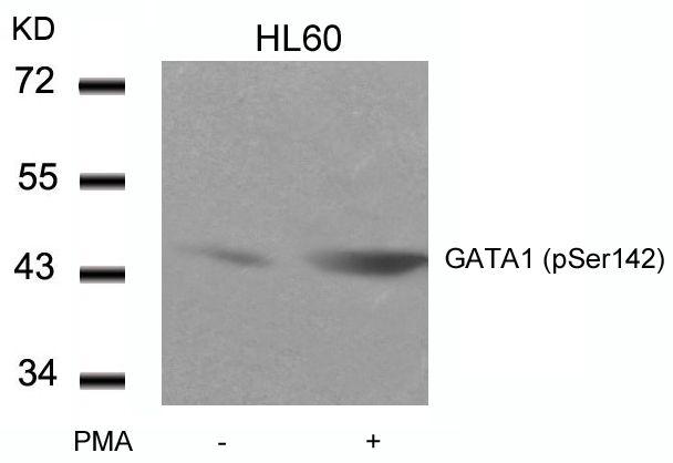 Phospho-GATA1 (Ser142) Antibody (PA5-37581) in Western Blot