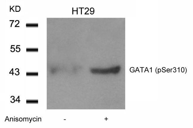 Phospho-GATA1 (Ser310) Antibody (PA5-37582) in Western Blot