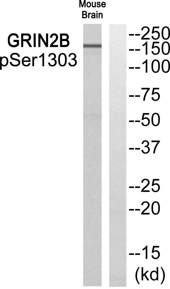 Phospho-NMDAR2B (Ser1303) Antibody (PA5-37590) in Western Blot