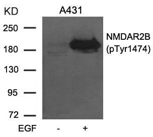 Phospho-NMDAR2B (Tyr1474) Antibody (PA5-37591) in Western Blot