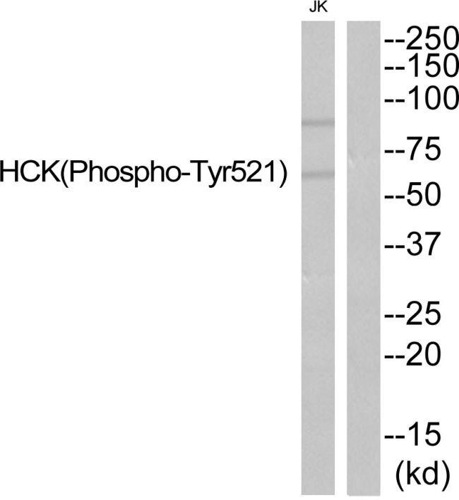 Phospho-HCK (Tyr521) Antibody (PA5-37592)