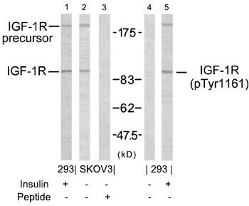 Phospho-IGF1R beta (Tyr1161) Antibody (PA5-37601) in Western Blot