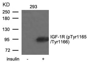 Phospho-IGF1R beta (Tyr1165, Tyr1166) Antibody (PA5-37602) in Western Blot