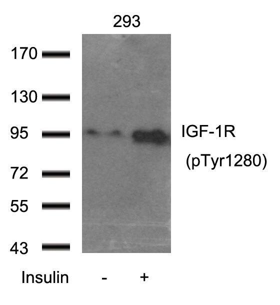 Phospho-IGF1R beta (Tyr1280) Antibody (PA5-37603) in Western Blot
