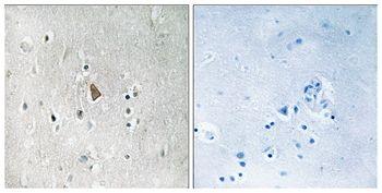 Phospho-IGF1R beta (Tyr1346) Antibody (PA5-37604)
