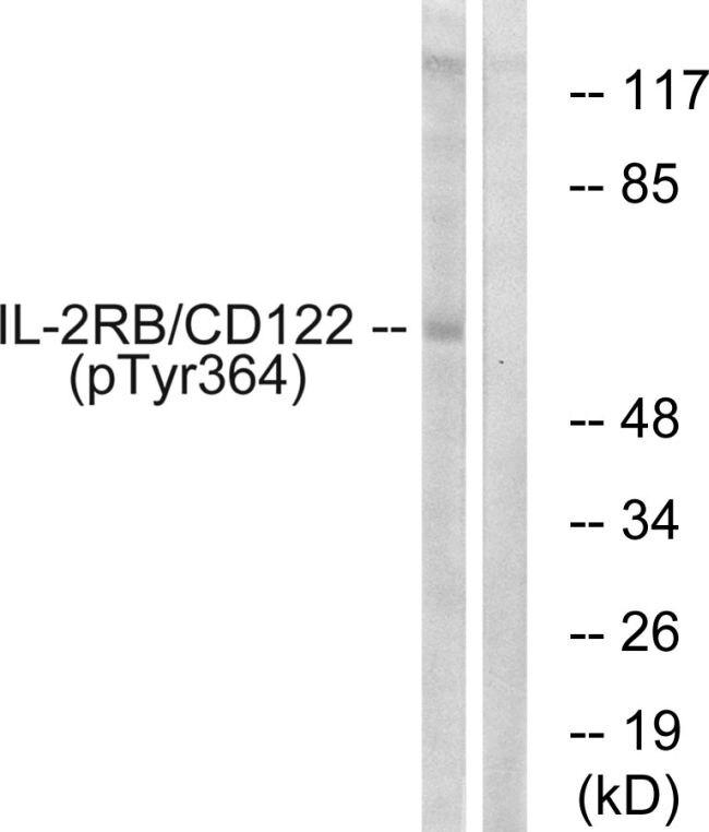 Phospho-CD122 (Tyr364) Antibody (PA5-37607) in Western Blot