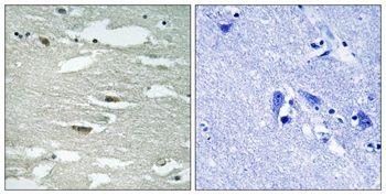 Phospho-ILK (Ser246) Antibody (PA5-37609) in Immunohistochemistry (Paraffin)