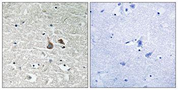 Phospho-IRAK1 (Ser376) Antibody (PA5-37611) in Immunohistochemistry (Paraffin)