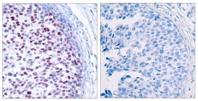 Phospho-c-Jun (Thr239) Antibody (PA5-37619) in Immunohistochemistry (Paraffin)