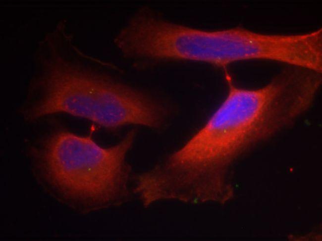 Phospho-Cytokeratin 8 (Ser74) Antibody (PA5-37623)