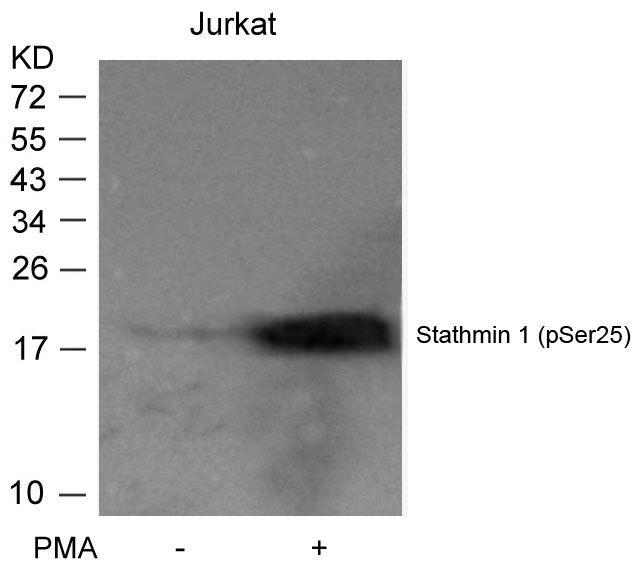 Phospho-Stathmin 1 (Ser25) Antibody (PA5-37625) in Western Blot