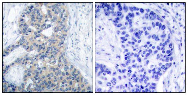 Phospho-Stathmin 1 (Ser38) Antibody (PA5-37626) in Immunohistochemistry (Paraffin)