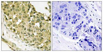 Phospho-STMN1 (Ser62) Antibody (PA5-37627) in Immunohistochemistry (Paraffin)