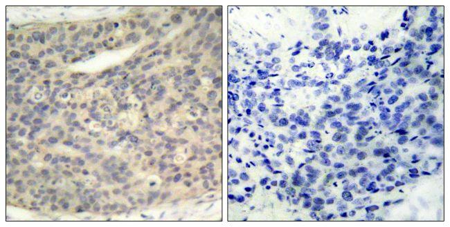 Phospho-LIMK1 (Thr508) Antibody (PA5-37629) in Immunohistochemistry (Paraffin)
