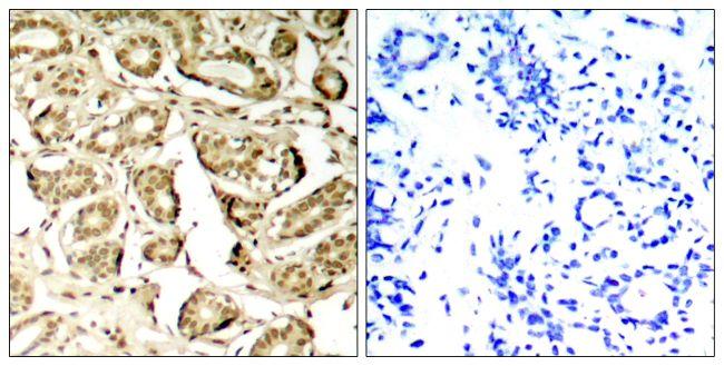 Phospho-MEF2A (Ser408) Antibody (PA5-37641) in Immunohistochemistry (Paraffin)