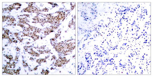 Phospho-MEF2A (Thr312) Antibody (PA5-37642) in Immunohistochemistry (Paraffin)