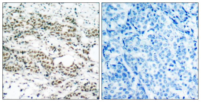Phospho-FOXO4 (Ser197) Antibody (PA5-37648) in Immunohistochemistry (Paraffin)
