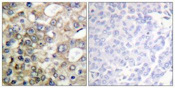 Phospho-MUC1 (Tyr1229) Antibody (PA5-37649) in Immunohistochemistry (Paraffin)