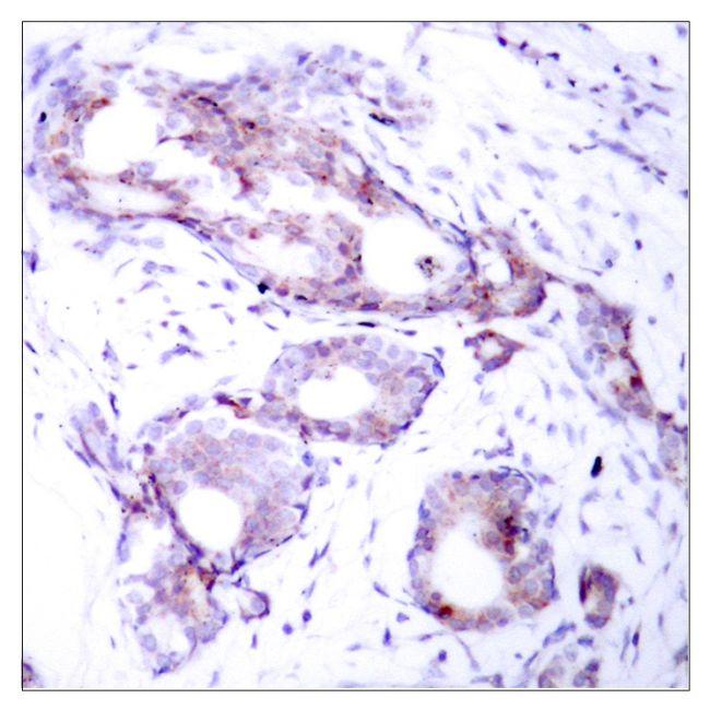 Phospho-c-Myc (Ser373) Antibody (PA5-37651)