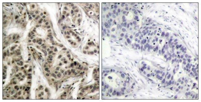 Phospho-NFkB p50 (Ser337) Antibody (PA5-37658) in Immunohistochemistry (Paraffin)