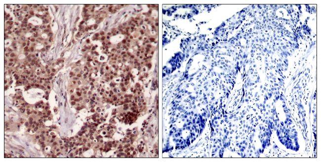 Phospho-NFkB p50 (Ser927) Antibody (PA5-37661) in Immunohistochemistry (Paraffin)
