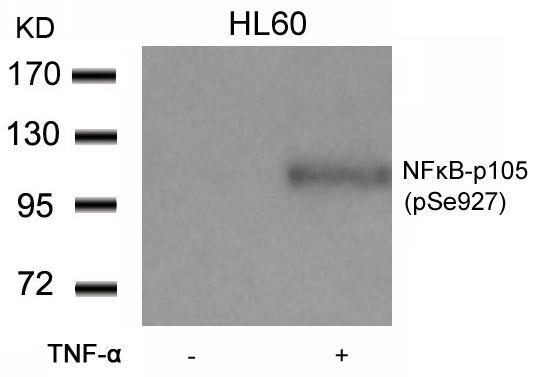 Phospho-NFkB p50 (Ser927) Antibody (PA5-37661) in Western Blot