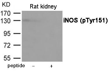Phospho-iNOS (Tyr151) Antibody (PA5-37667) in Western Blot