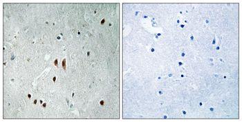 Phospho-CNOT2 (Ser101) Antibody (PA5-37668)