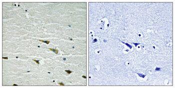 Phospho-TrkA (Tyr757) Antibody (PA5-37670)
