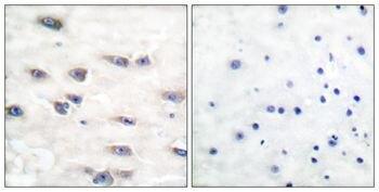 Phospho-TrkA (Tyr791) Antibody (PA5-37671)
