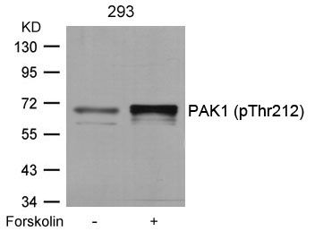 Phospho-PAK1 (Thr212) Antibody (PA5-37677) in Western Blot