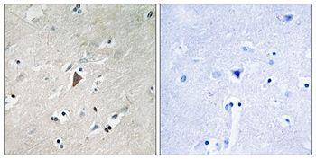 Phospho-PDPK1 (Tyr9) Antibody (PA5-37680) in Immunohistochemistry (Paraffin)