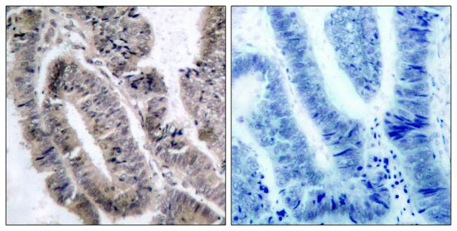 Phospho-AMPK alpha-1 (Ser487) Antibody (PA5-37690) in Immunohistochemistry (Paraffin)