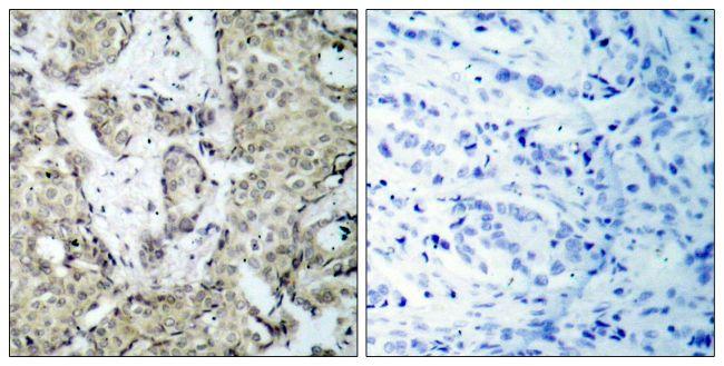 Phospho-MEK3 (Ser189) Antibody (PA5-37700) in Immunohistochemistry (Paraffin)