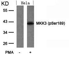Phospho-MEK3 (Ser189) Antibody (PA5-37700) in Western Blot