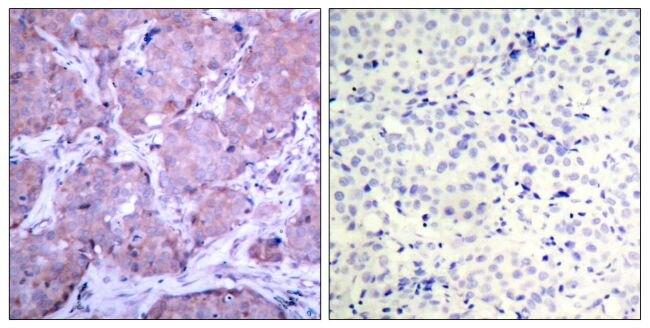 Phospho-PTEN (Ser380) Antibody (PA5-37705) in Immunohistochemistry (Paraffin)