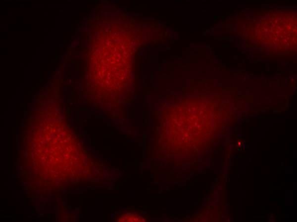 Phospho-Rb (Ser795) Antibody (PA5-37715)