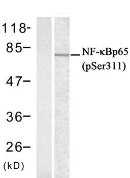 Phospho-NFkB p65 (Ser311) Antibody (PA5-37720) in Western Blot