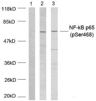 Phospho-NFkB p65 (Ser468) Antibody (PA5-37721) in Western Blot