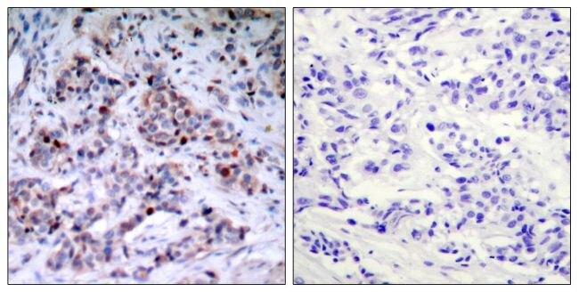 Phospho-NFkB p65 (Thr435) Antibody (PA5-37724) in Immunohistochemistry (Paraffin)
