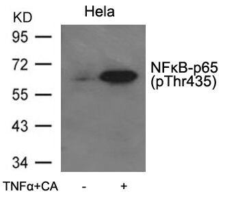 Phospho-NFkB p65 (Thr435) Antibody (PA5-37724) in Western Blot
