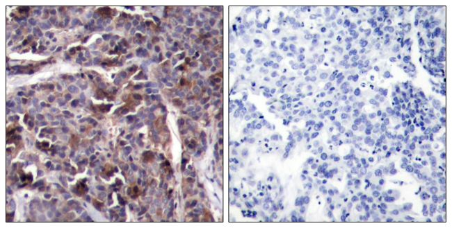 Phospho-NFkB p65 (Thr505) Antibody (PA5-37725)