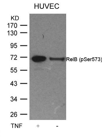 Phospho-RelB (Ser573) Antibody (PA5-37726) in Western Blot