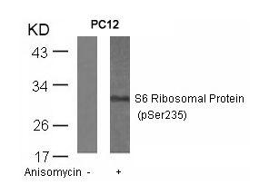 Phospho-S6 (Ser235) Antibody (PA5-37727) in Western Blot
